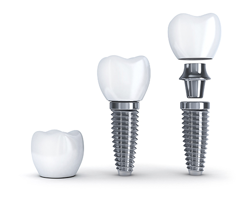 Diagram of single tooth dental implant